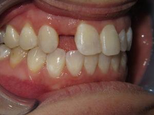 Dental Implants Lincoln Park