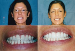 Veneers Gingivectomy
