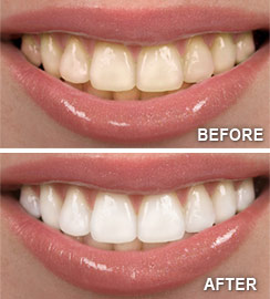 Teeth Whitening in Lincoln Park, Lakeview, & Chicago - Before & After