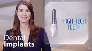 implant-high-tech-teeth