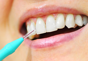 Interdental Cleaning Devices Lincoln Park, Lakeview, Chicago