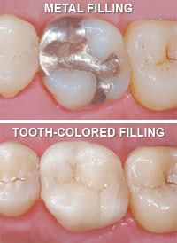 Tooth Colored Fillings Lincoln Park, Lakeview, Chicago