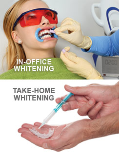 In-Office & Take-Home Teeth Whitening