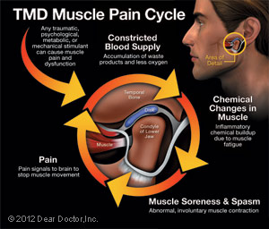 TMD Muscle Pain Cycle Chicago