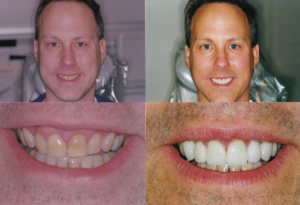 Crown Lengthening Osseous Surgery Mike