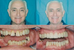 Dental Implants Lincoln Park Implant Dentistry Lakeview