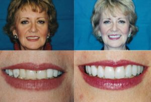 Gingivectomy Veneers Bridge-Desbra1