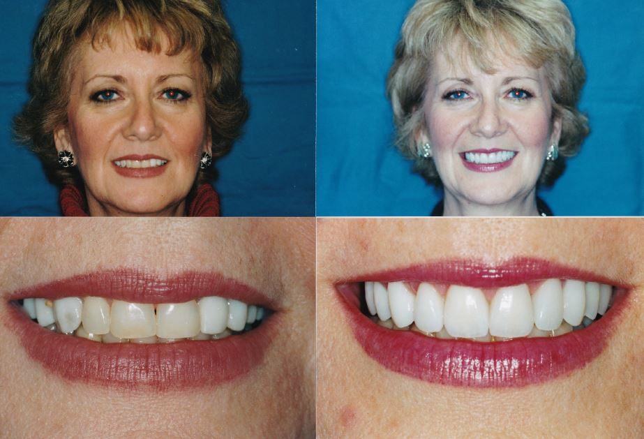 Gingivectomy-Veneers-Bridge-Desbra1