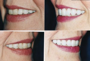 Gingivectomy Veneers Bridge-Desbra 2