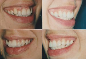 Invisalign Gingivectomy Sirri