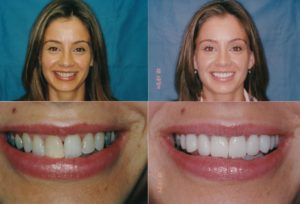 Whitening Gingevectomy Ewelina