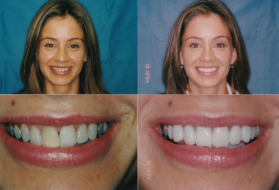 Veneers-Crowns-Whitening-Gingevectomy-Ewelina1