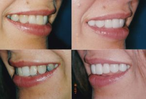 Veneers Crowns Whitening-Gingevectomy Ewelina2