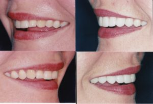 Veneers Gingivectomy Whitening Susanne