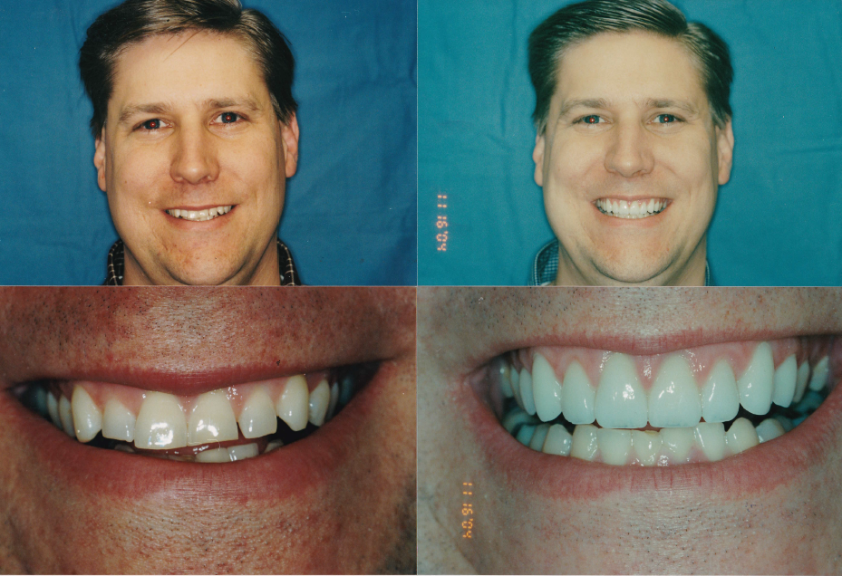 Veneers-_-gingivectomy-Matt1