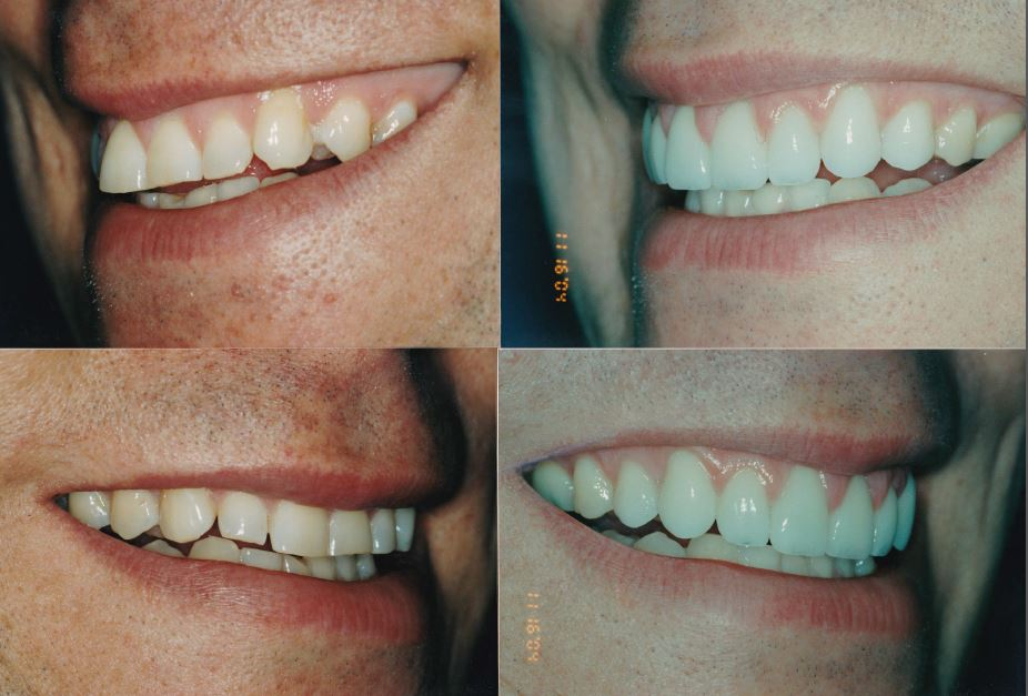 Veneers-_-gingivectomy-Matt2