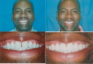 Dental Veneers Lakeview