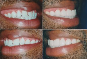 Dental Veneers Chicago