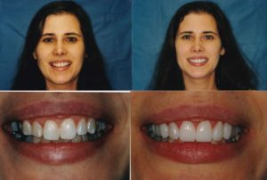 implant-crown-and-veneers-1-Diane-300x202.jpg