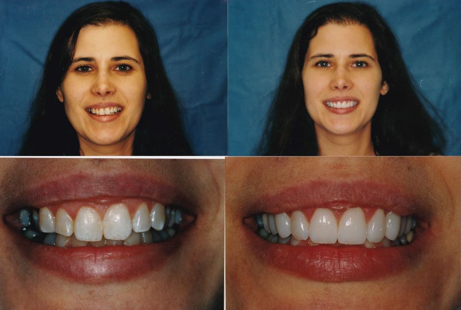 crown-lengthening-implant-crown-and-veneers-1-Diane