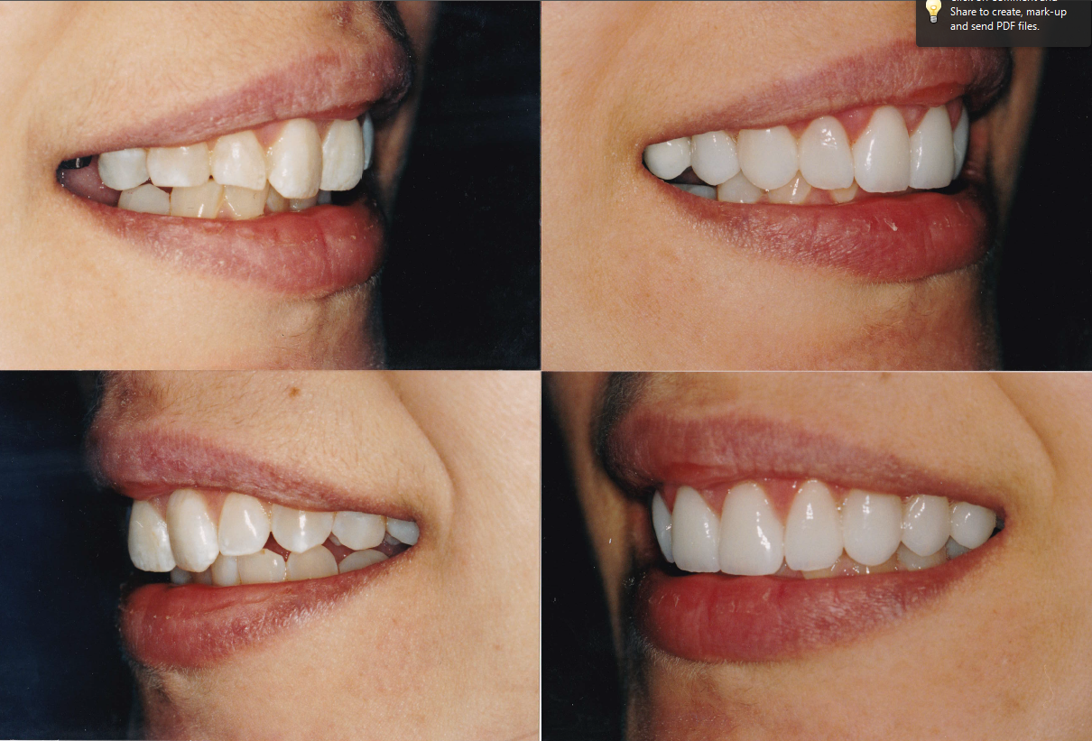 crown-lengthening-implant-crown-and-veneers-2-diane