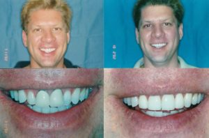 Teeth Whitening Lincoln Park
