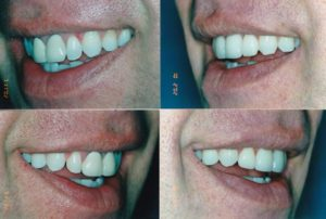 Crowns And Veneers Whitening Doug 2