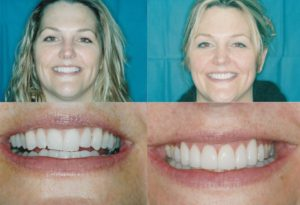 Ging And Veneers Bethany 1