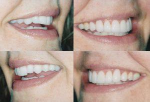 Dental Veneers Lincoln Park