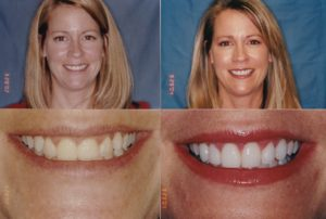 Ging and veneers Lisa-1