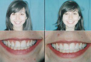 Dental Porcelain Laminates Chicago