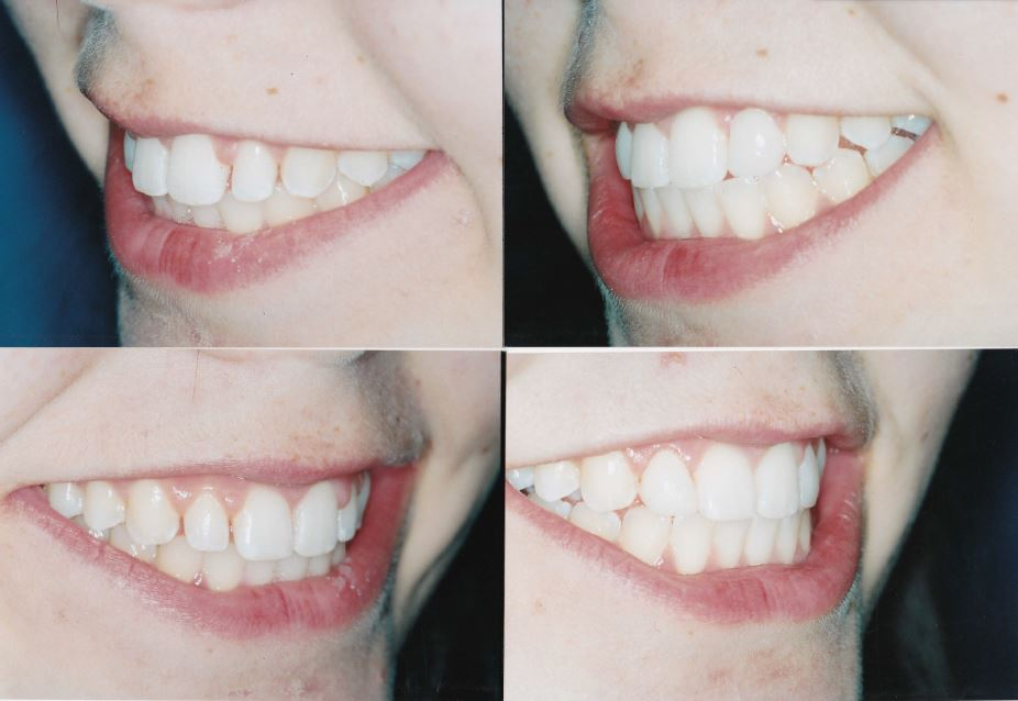 ging-and-veneers-Rachel-2