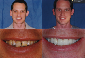 Ging Veneers and Whitening Chris