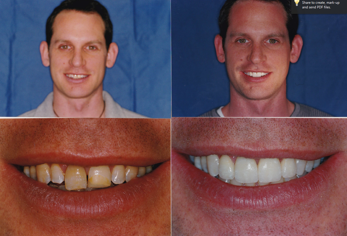 ging.-veneers-and-whitening-Chris-1