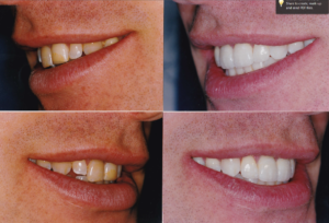 Dental Veneers Procedures