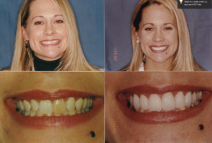 Ging Veneers Whitening Tracy