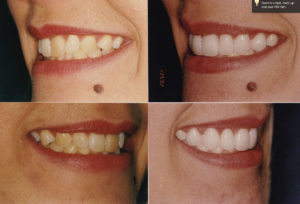 Zoom Teeth Whitening Lakeview
