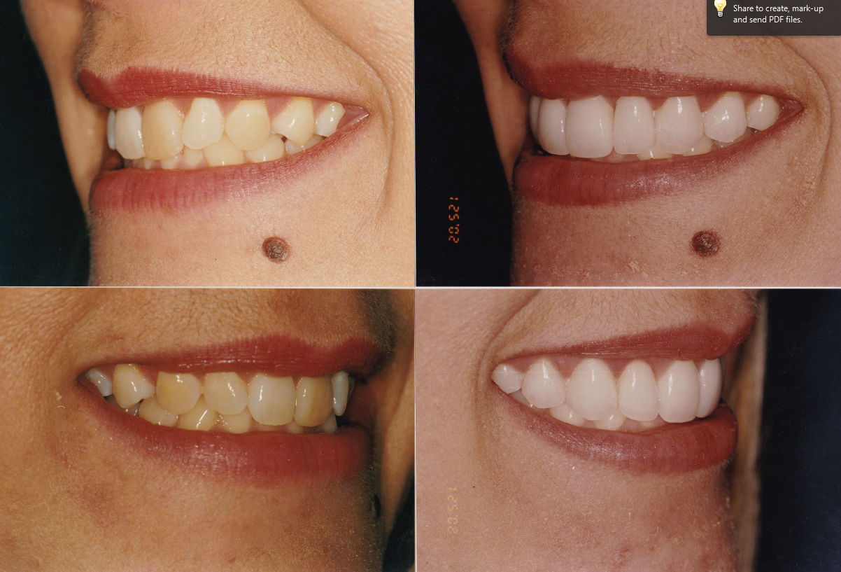 ging.-veneers-whitening-Tracy-2