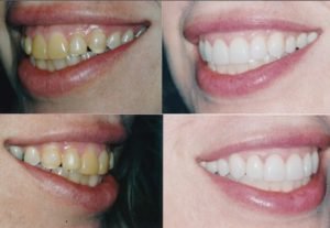 Removable Veneers