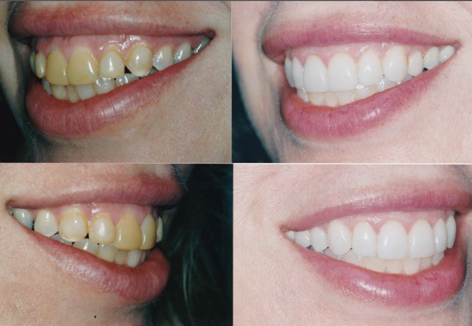 gingivectomy-veneers-Marcy1-2