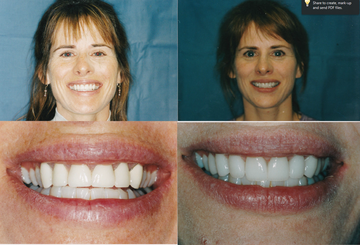 remake-crowns-gingigvectomy-crowns-and-veneers-Mary-1