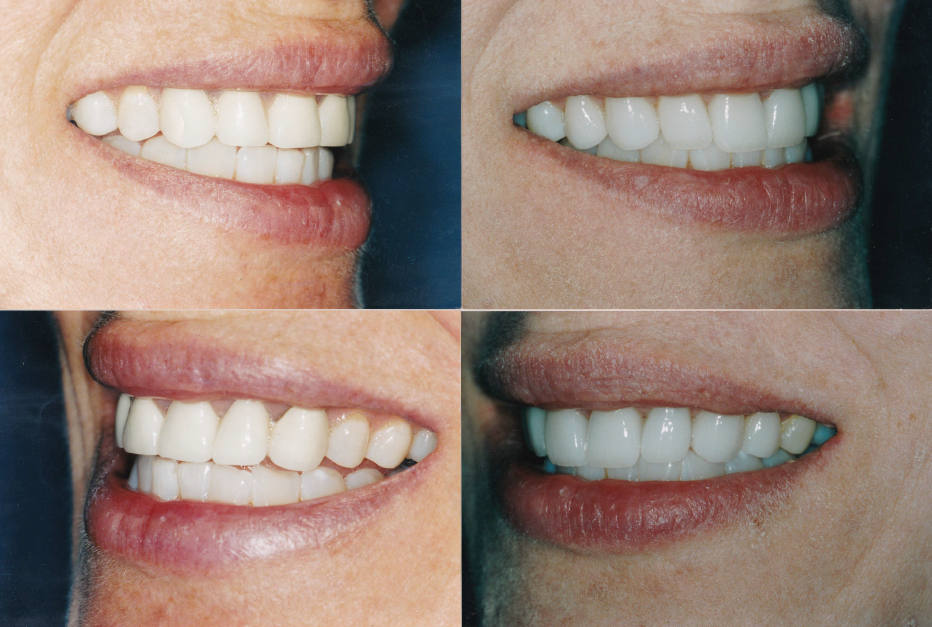 remake-crowns-gingigvectomy-crowns-and-veneers-Mary-2