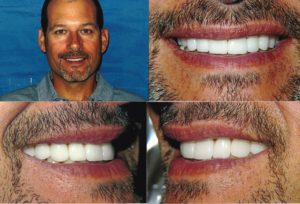 Porcelain Veneers Lakeview