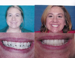 Invisalign Clear Aligners Lincoln Park