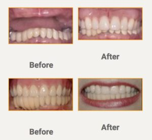 Professional Dental Implant