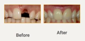 Severe Multiple Teeth Recession and Whitening of teeth