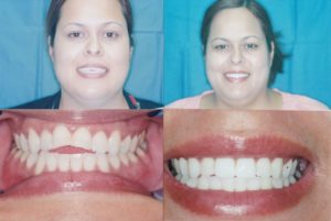 Cosmetic Dental Bonding Before and After