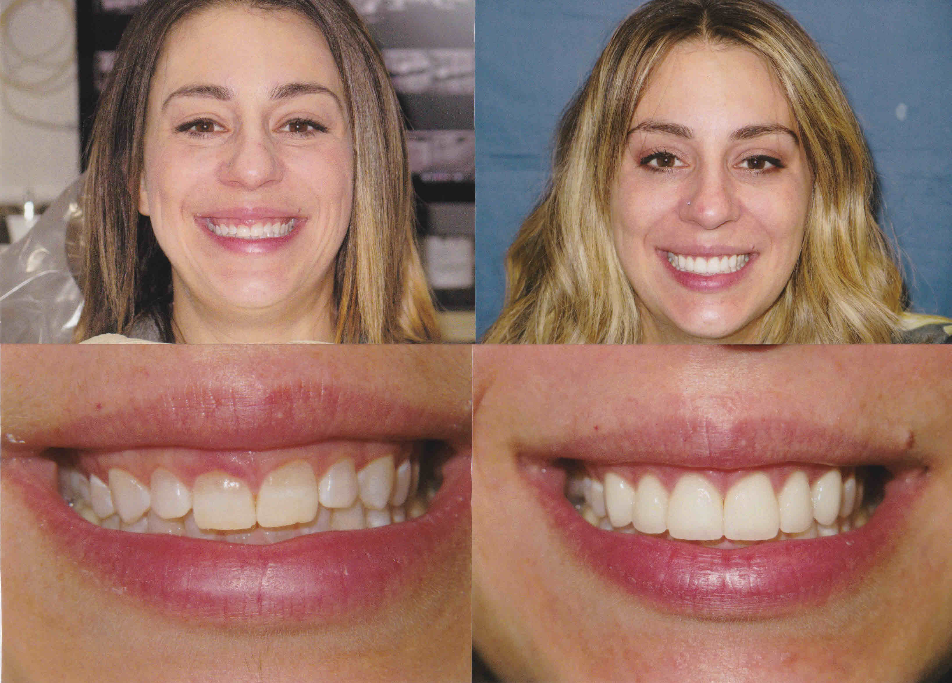 Gingectomy-Veneers-1